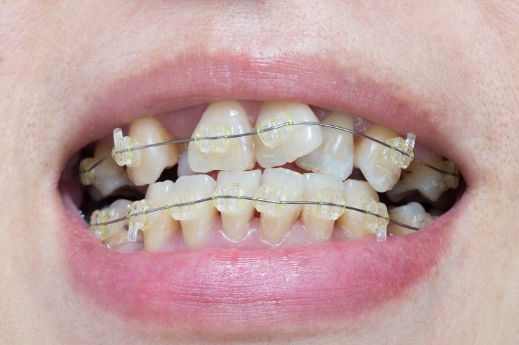 Dague Dental